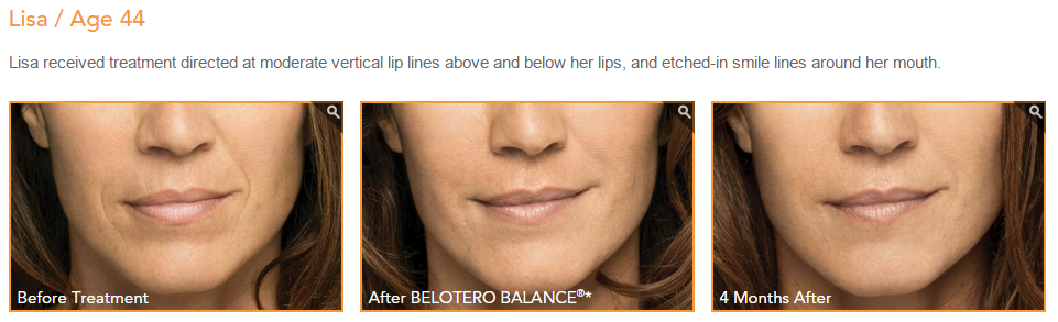 belotero before and after