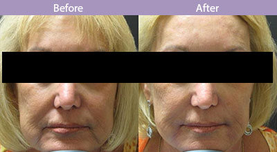 Fillers-Same Day Results (Dr.Besnoff's Patient)