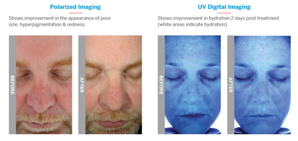hydrafacial results