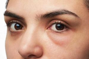 Banish Under Eye Bags